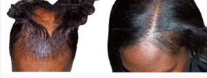 grow my edges back fast with bald edges treatment