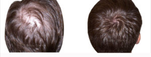 bobby-spence-minoxidil-before-and-after-male-hair-loss