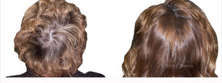 hair thinning at crown female and thinning hair on top of head female