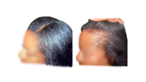 black hair loss edges before and after